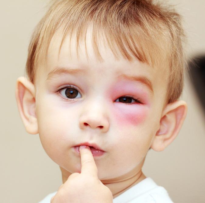 Little boy with wasp sting around eye.